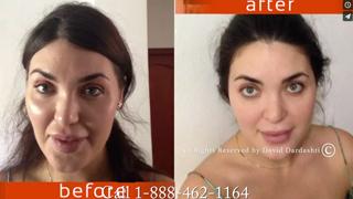 ibogaine anti aging